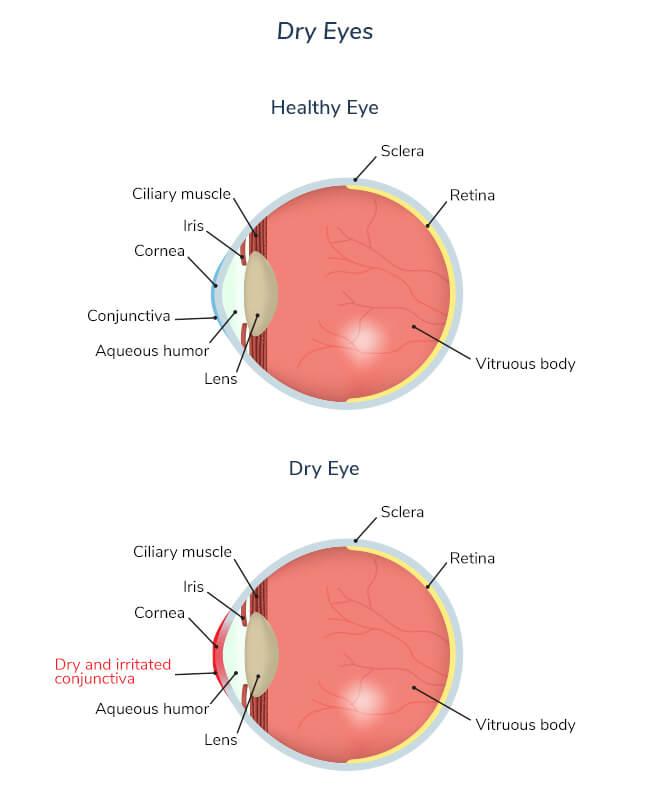 dry-eye-syndrome-dry-eye