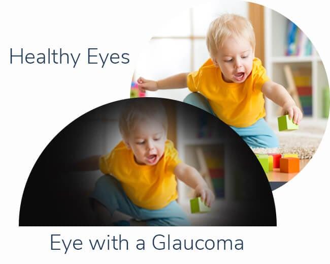 eye-with-glaucoma