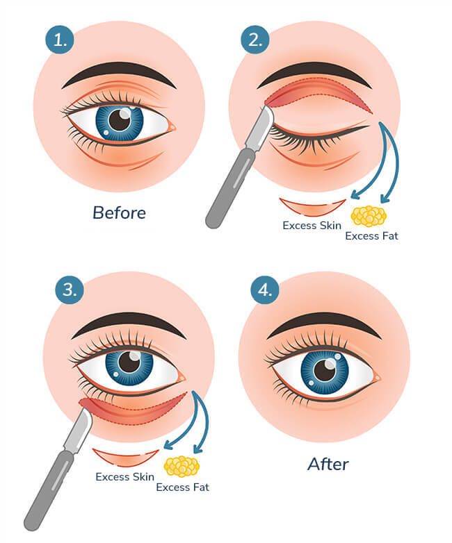 blepharoplasty-process