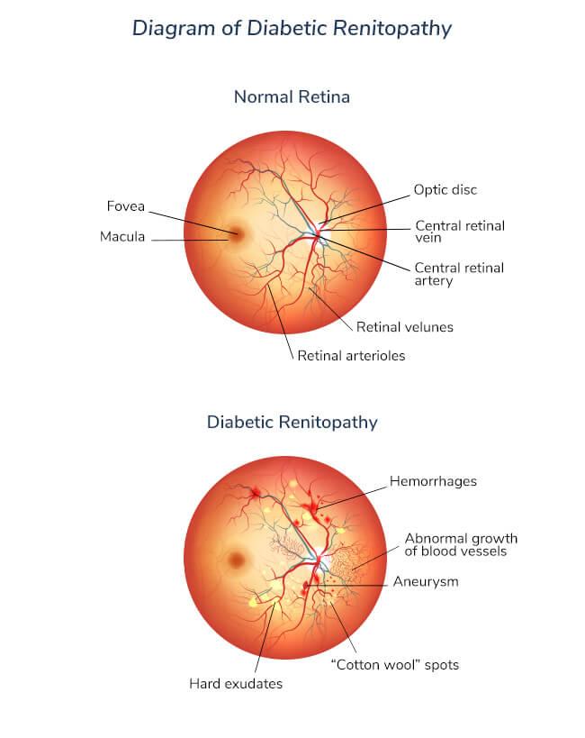 diabetic-renitopathy